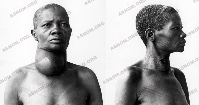 Leprosy Before And After Treatment